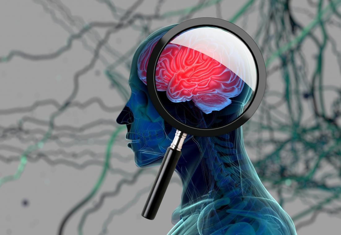 Parkinson's Brain Damage Reversed in Study